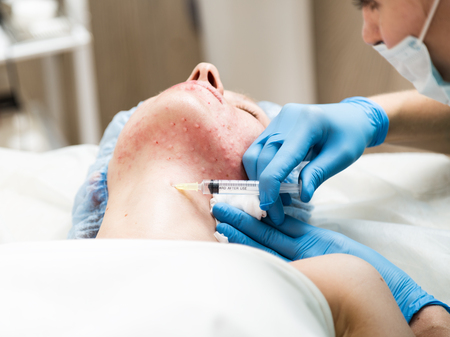 fractional: Beautician makes biorevitalization to young woman. The cosmetic procedures for the face. Beauty treatments in the spa salon. Facial Skin Care. Stock Photo