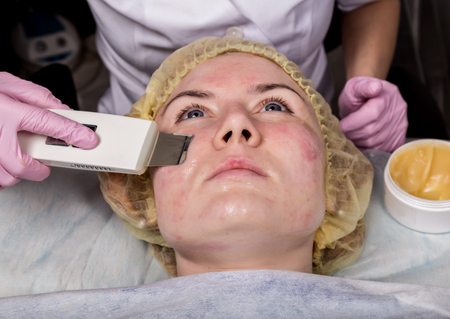 beautician at work. Ultrasonic face cleaning procedure for problem skin. Pore cleansing, oxygen saturation for womans face Stock Photo