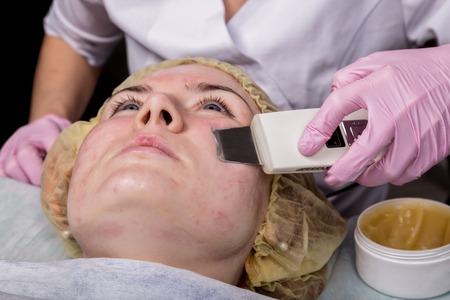 beautician at work. Ultrasonic face cleaning procedure for problem skin. Pore cleansing, oxygen saturation for womans face