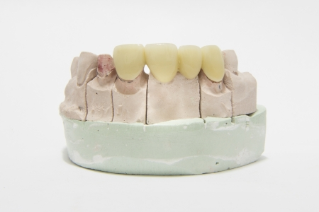zircon: All ceramic highly aesthetic dental bridge and crown on gypsum model from labotary