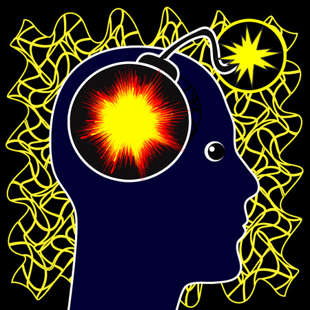 abnormal: Epilepsy Concept. Epileptic seizure caused by abnormal electrical activity in the brain Stock Photo