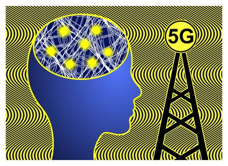 5G cell towers dangerous for health. Ultra high radio frequencies can trigger a number of diseases like epilepsy, cancer or severe headache Banco de Imagens