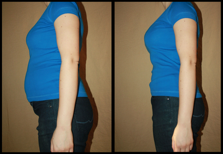 Bloated and flat female belly before and after from the side, no interventions, no weight loss, only bulging and tucked clenched stomach… illustrative image for many topics, slimming belt products, problems with bloating floating, weight loss, abdomen fitness exercises, pregnancy and postpartum belt… Standard-Bild