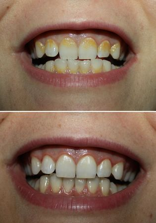 Real before and after tartar plaque removal, yellow tartar dental coating dirty teeth and white clean one Foto de archivo