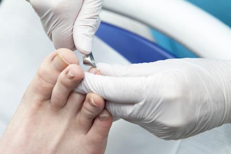 chiropodist: Cutting toe nails bij pedicure in closeup