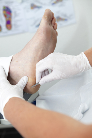 callus: Removing dry callas of feet in closeup