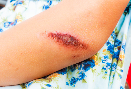 lesions: scaly lesions on arm Stock Photo