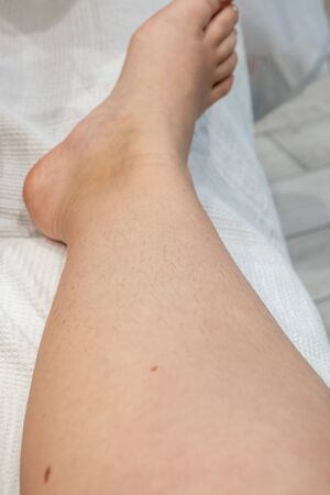 hair on women's legs, hair removal before and after. concept cosmetic procedure