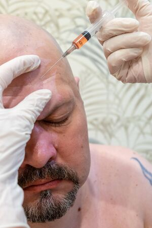 men's cosmetic operations. injections in the forehead to straighten out wrinkles, botox. Macro close up of therapist injecting enzymes on forehead with derma pen of middle aged man.