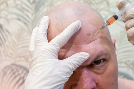 mens cosmetic operations. injections in the forehead to straighten out wrinkles, Botox