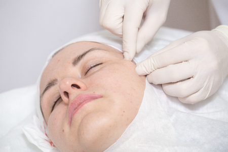 regenerative: Photo of cosmetic procedures . Cosmetic injections .