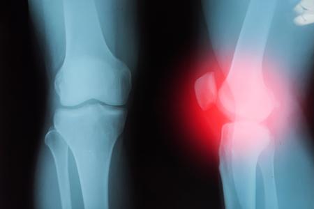 artrosis: Cine articulaci�n de la rodilla de rayos x con la artritis (La gota, la artritis reumatoide, la artritis s�ptica, osteoartritis de la rodilla)
