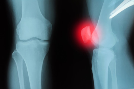 septic: Film x-ray knee joint with arthritis ( Gout , Rheumatoid arthritis , Septic arthritis , Osteoarthritis knee )
