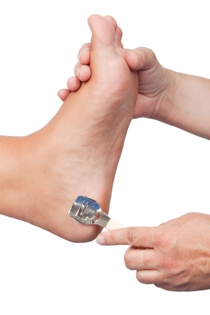 Callus removal on a female foot - isolated