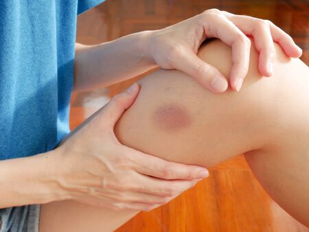 Woman's got a purple bruise on her leg
