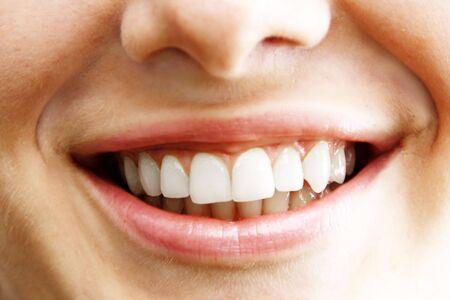 Beautiful young woman teeth photo