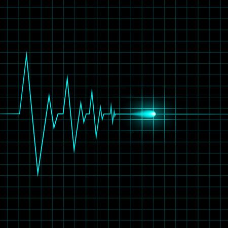 cardiogram: Heart cardiogram