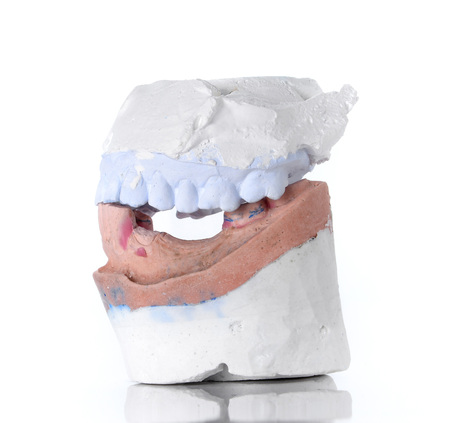 surrogate: Top and Bottom denture mold,broken tooth placed on white background.