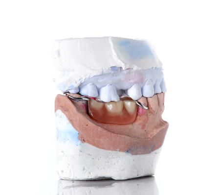 false teeth: Top and bottom denture mold,false teeth on white background.