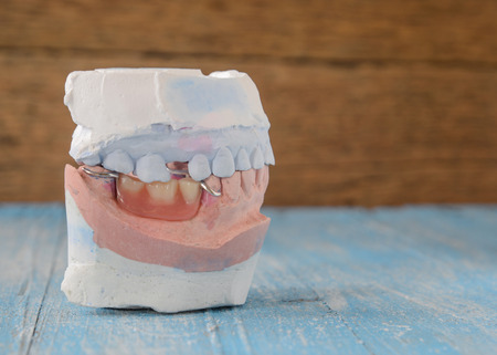 surrogate: Top and Bottom denture mold,false teeth placed on wooden floor. Stock Photo