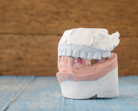 surrogate: Top and Bottom denture mold,broken tooth placed on wooden floor.