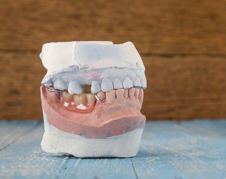dentures: Denture mold,false teeth placed on wooden floor.