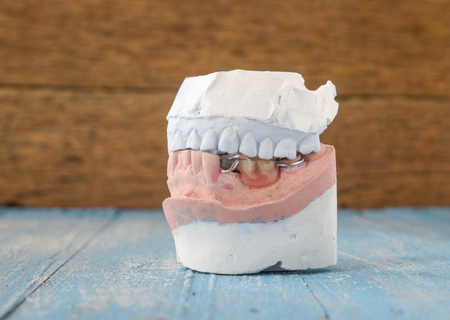 surrogate: Denture mold,false teeth placed on wooden floor.