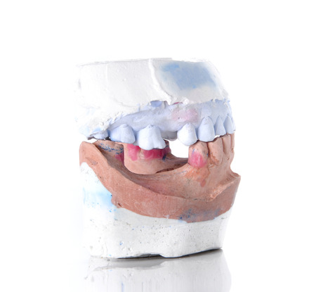 upper floor: Top and Bottom denture mold,broken tooth placed on white background.