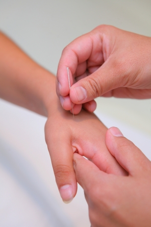 acupuncture - hand inserting needle