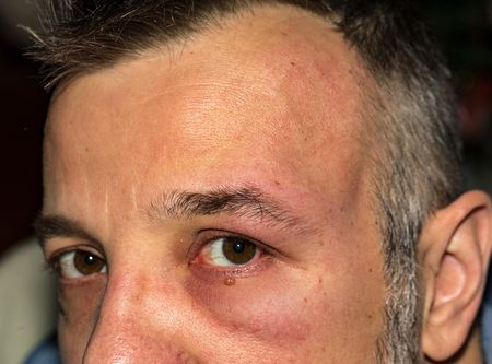 Man with allergic reaction on eye and forehead
