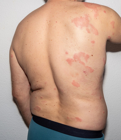 Man with dermatitis problem of rash. Allergy rash. Histamine reaction Stock Photo