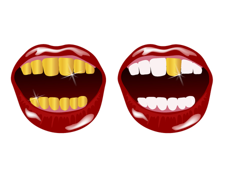 Woman smile with golden teeth Illustration