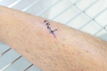 flesh surgery: Stitches in the leg