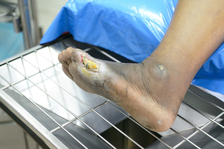 wound of diabetic foot  photo