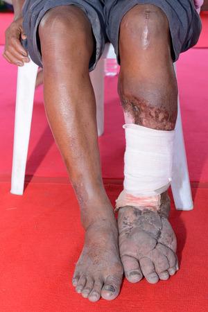 ulc�re: ulc�re chronique du pied gauche Banque d'images