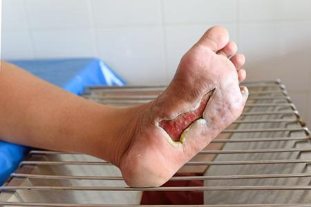 herida: herida del pie diab�tico Foto de archivo