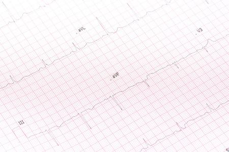 electrocardiograma: Electrocardiograma primer plano