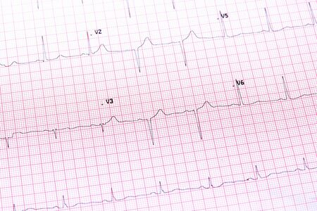 of electrocardiogram: Electrocardiogram close-up Stock Photo