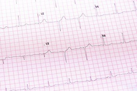 elettrocardiogramma: Elettrocardiogramma primo piano Archivio Fotografico