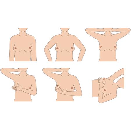 Selbstuntersuchung der Brust Standard-Bild - 51368423