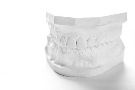 치과 주조 석고 모델 석고 캐스팅 stomatologic 인간의 턱 정성 실험실, 기술 샷
