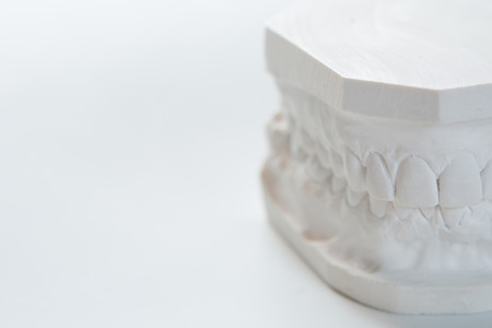 plaster mould: Gypsum model of human jaw on a white background. Selective Focus