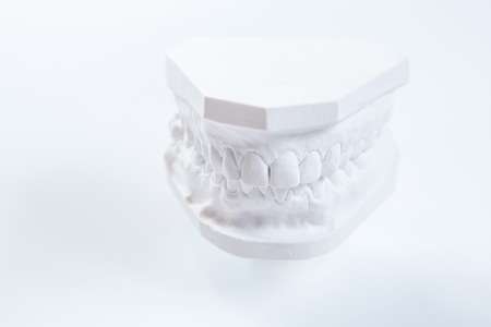 prothetic: Gypsum model of human jaw on a white background. Selective Focus