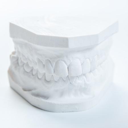 plaster mould: Dental casting gypsum model plaster cast stomatologic human jaws prothetic laboratory, technical shots Stock Photo