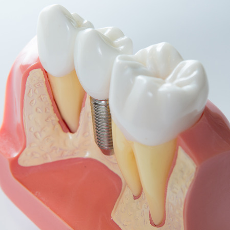 dentistry: Close up of a Dental  implant model. Selective focus.