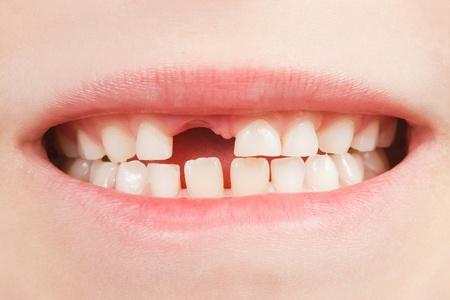 Nahaufnahme des geöffneten Mund eines Kindes mit einer Zahnlücke Standard-Bild - 13516366