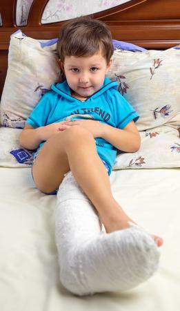 plaster leg cast: The boy cast
