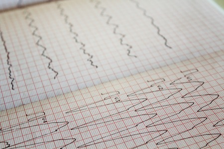 Close up view of an electrocardiogram paper Stock Photo