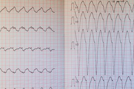 Close up view of an electrocardiogram paper 版權商用圖片