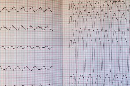 Close up view of an electrocardiogram paper Stock fotó